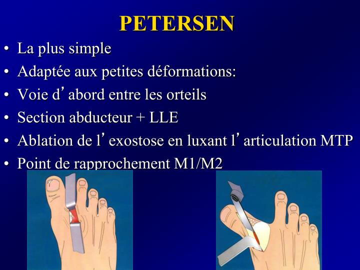 PETERSEN