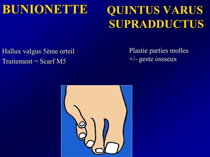 BUNIONETTE