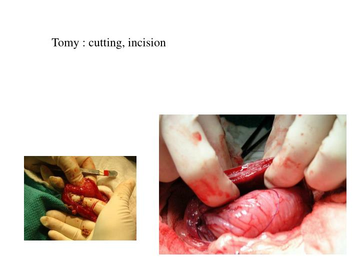 Tomy : cutting, incision