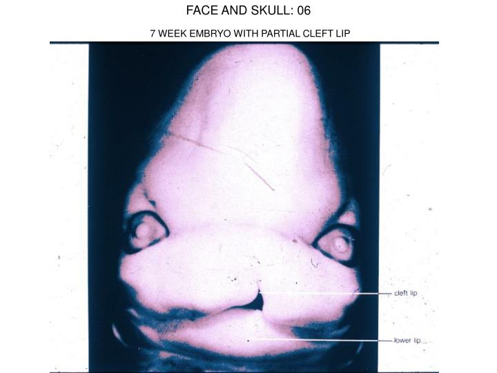 FACE AND SKULL: 06