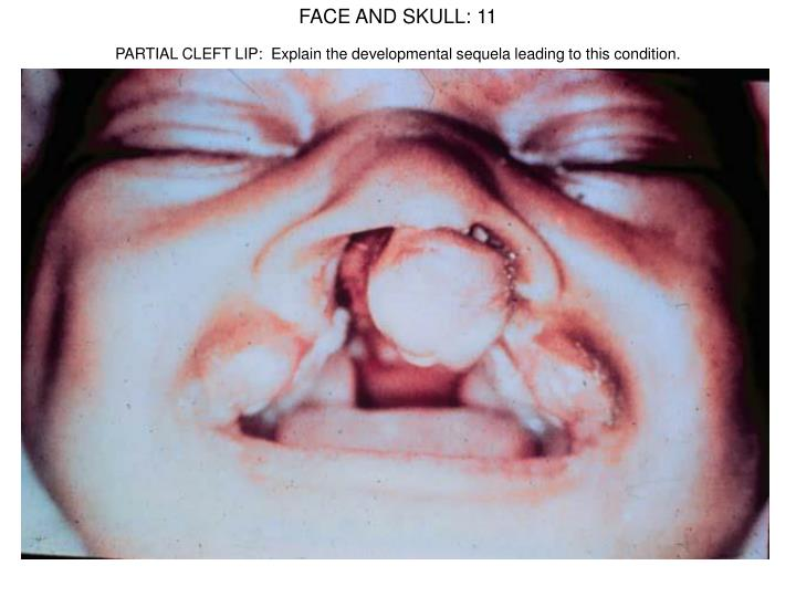 FACE AND SKULL: 11
