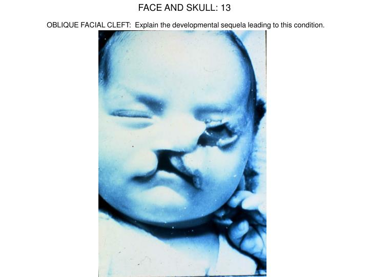 FACE AND SKULL: 13
