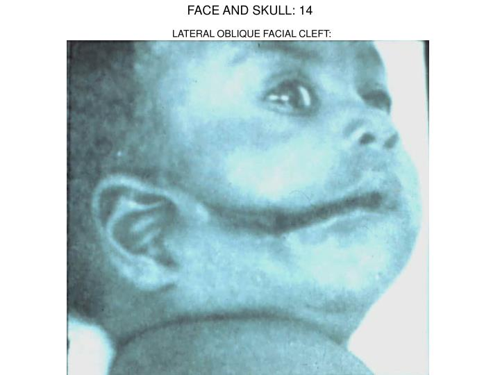 FACE AND SKULL: 14