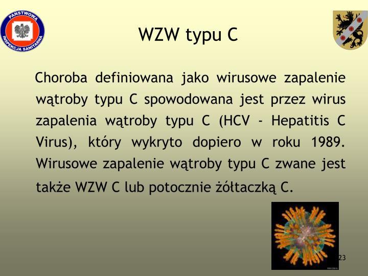 WZW typu C