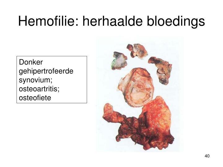Hemofilie: herhaalde bloedings