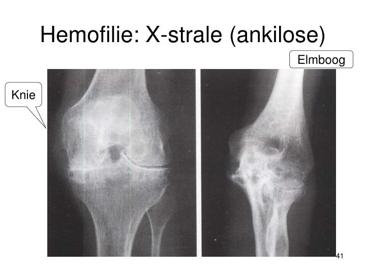 Hemofilie: X-strale (ankilose)