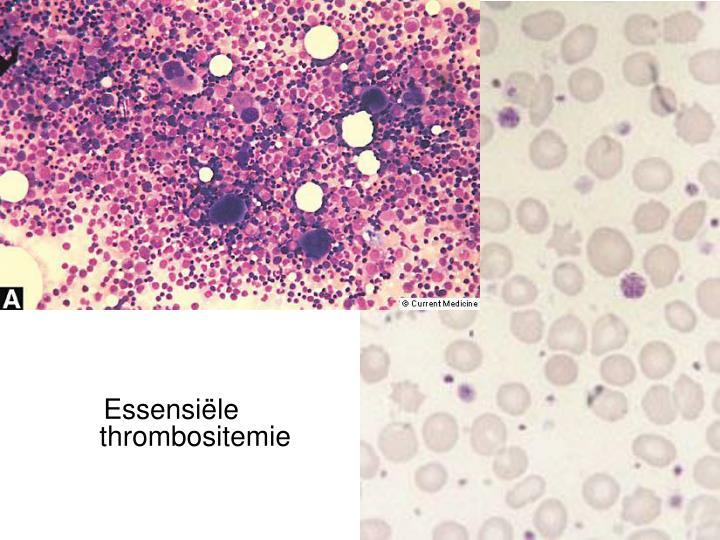 Essensiële thrombositemie