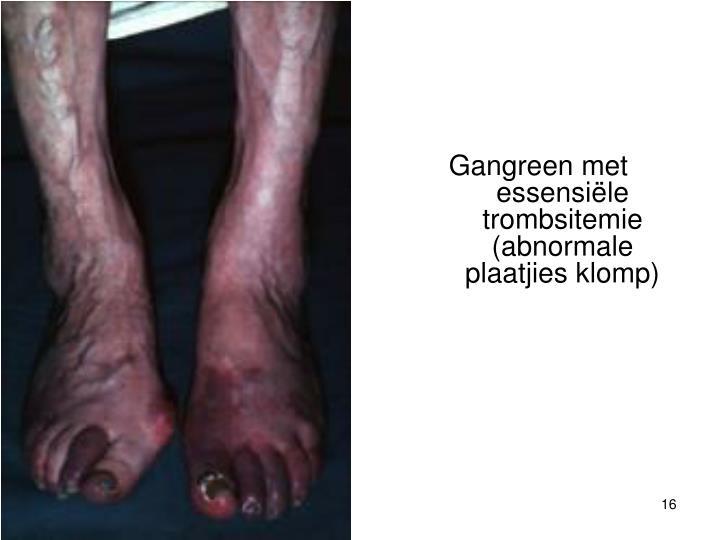 Gangreen met essensiële trombsitemie