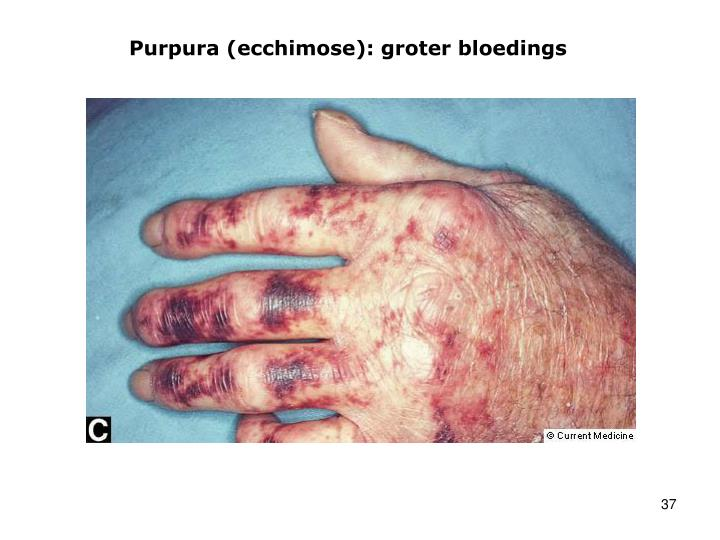 Purpura (ecchimose): groter bloedings