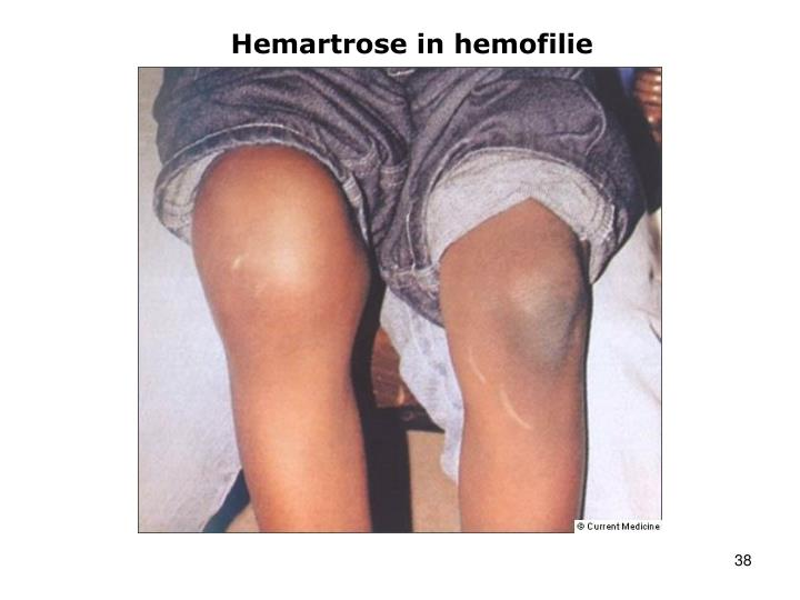 Hemartrose in hemofilie