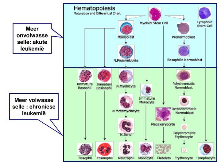 Meer onvolwasse selle: akute leukemië