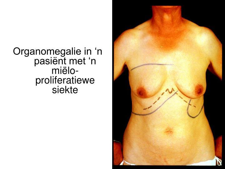 Organomegalie in 'n pasiënt met 'n miëlo-proliferatiewe siekte