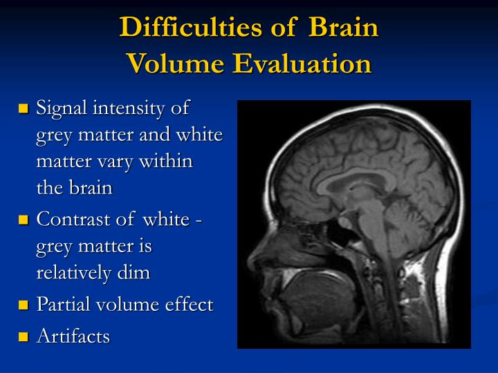 analysis of grey matter Gray matter by: steven king narrator first person the author made it unclear of the name of the narrator stephen king chose to put the story in first person because he wanted the reader to think that the narrator could be anyone-even someone they knew-for a scary effect.