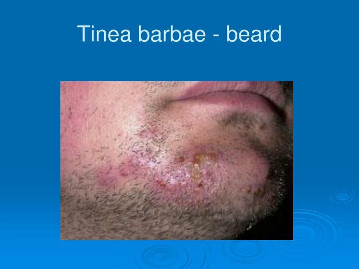Tinea barbae - beard