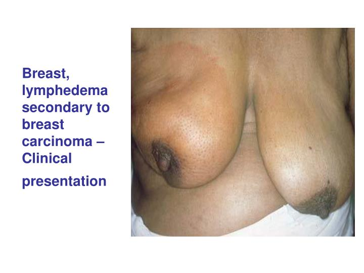 Breast, lymphedema secondary to breast carcinoma – Clinical presentation