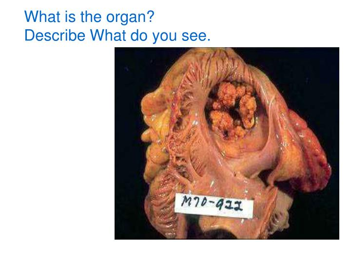What is the organ?