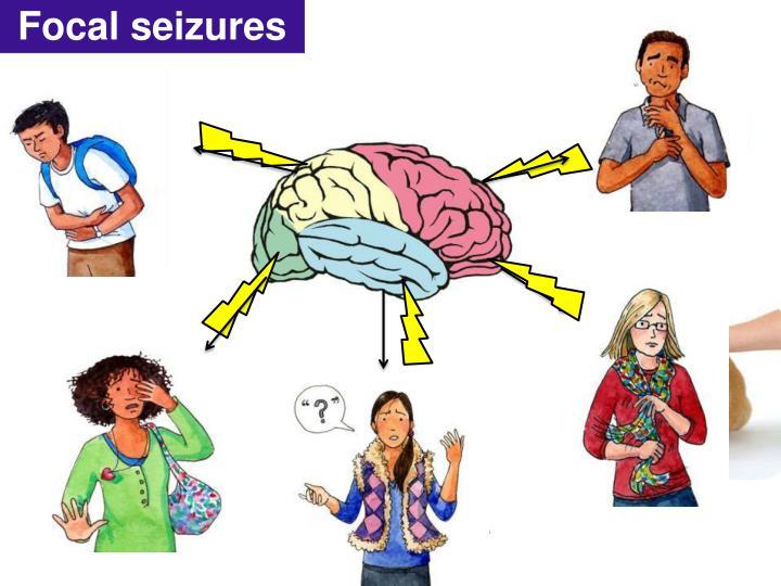 Focal seizures