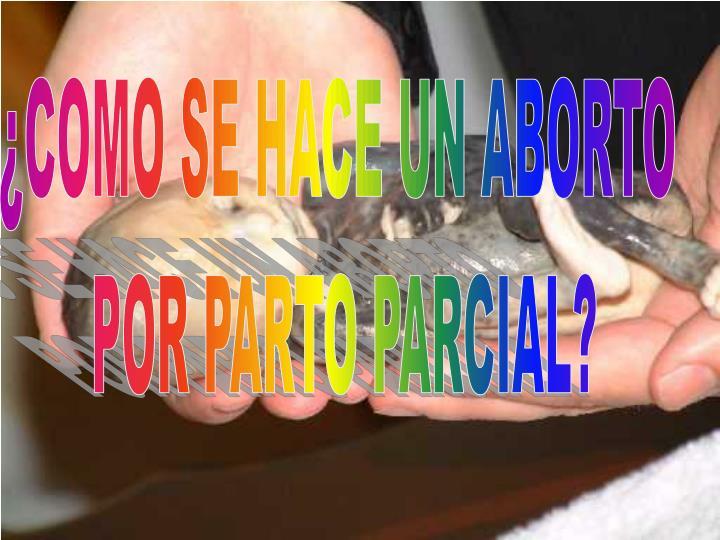 ¿COMO SE HACE UN ABORTO