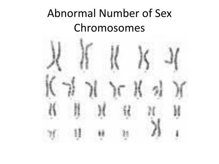 Abnormal Number of Sex Chromosomes