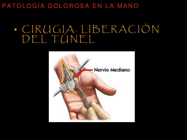 Cirugia. Liberación del túnel