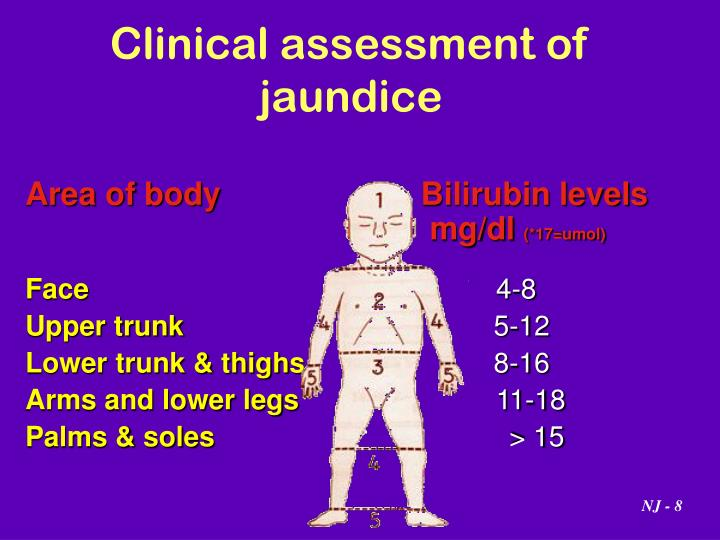 Clinical assessment of jaundice