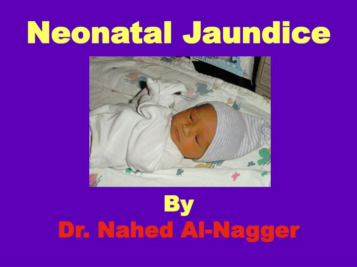 Neonatal jaundice by dr nahed al nagger