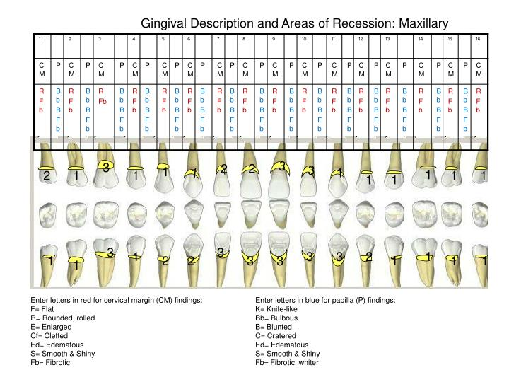 Gingival Description and Areas of Recession: Maxillary