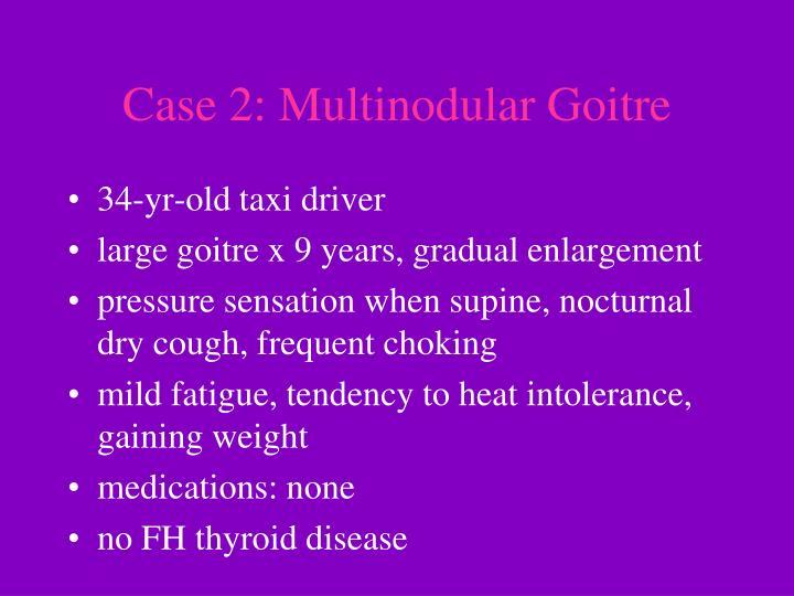 Case 2: Multinodular Goitre