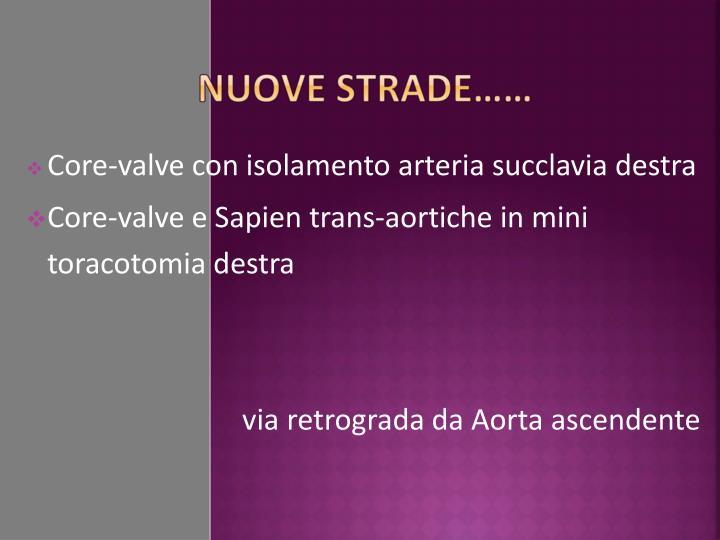 Core-valve con isolamento arteria succlavia destra