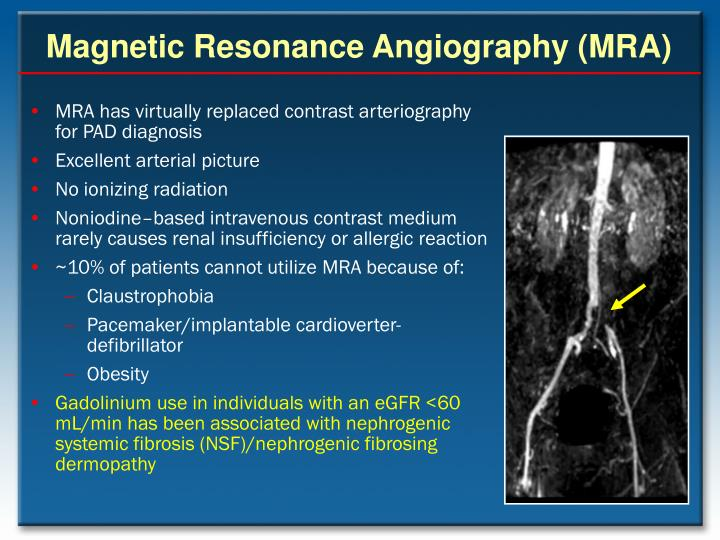Magnetic Resonance Angiography (MRA)