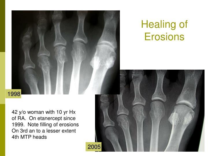 Healing of Erosions