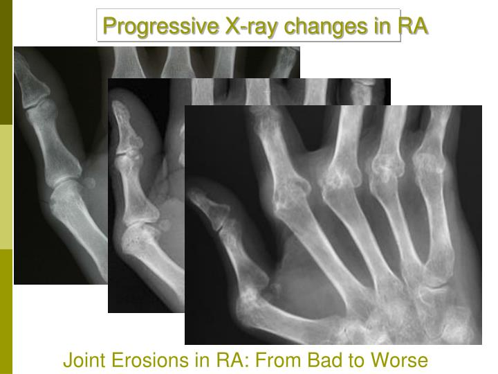 Progressive X-ray changes in RA