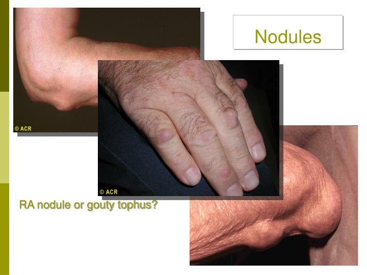 Nodules
