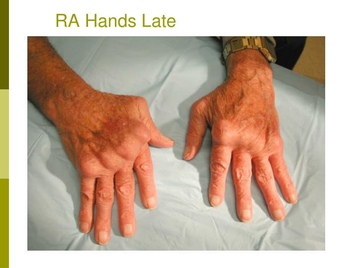 RA Hands Late