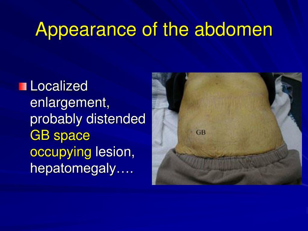 PPT - Abdominal Examination PowerPoint Presentation, free ...