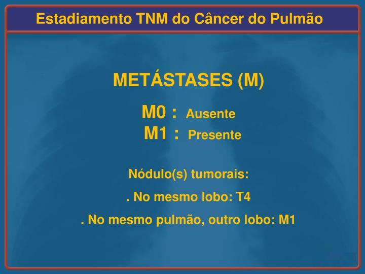 Estadiamento TNM do Câncer do Pulmão