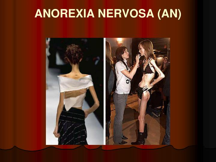 ANOREXIA NERVOSA (AN)