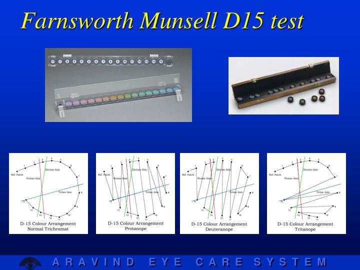 Farnsworth Munsell D15 test