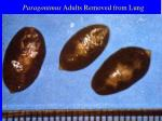 paragonimus adults removed from lung