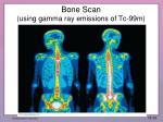 bone scan using gamma ray emissions of tc 99m