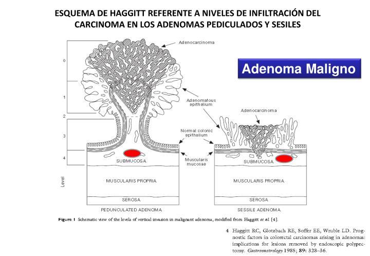 ESQUEMA DE HAGGITT REFERENTE A NIVELES DE INFILTRACIÓN DEL CARCINOMA EN LOS ADENOMAS PEDICULADOS Y SESILES