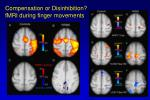 compensation or disinhibition fmri during finger movements