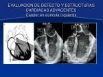 evaluacion de defecto y estructuras cardiacas adyacentes cateter en auricula izquierda5