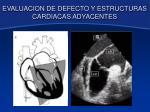 evaluacion de defecto y estructuras cardiacas adyacentes5