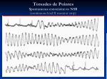 torsades de pointes spontaneous conversion to nsr continuous lead ii monitor strip