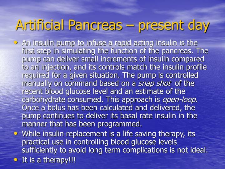 Artificial Pancreas – present day