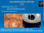 colonoscopia virtual ctc7
