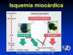 isquemia mioc rdica7