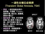 transient global amnesia tga