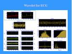 wavelet for ecg